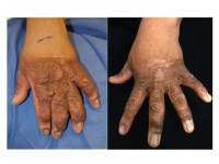 Before-after laser treatment of burn scars
